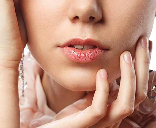 7. Winter is here, and so are chapped lips!