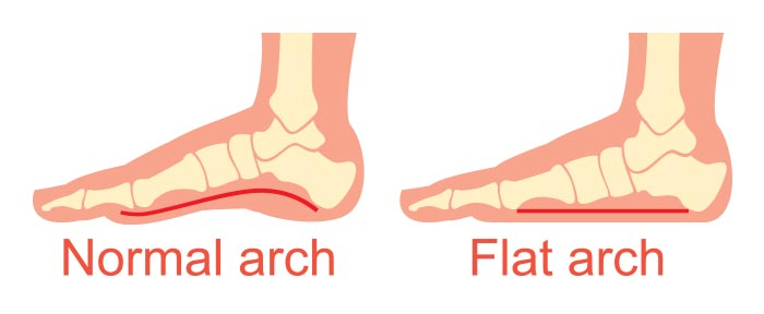 Best Running Shoes For Flat Feet - What Are 'Flat Feet' And, How Do They Look