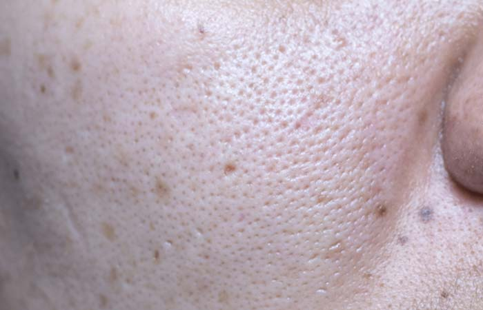What Are Blackheads And How Do They Happen