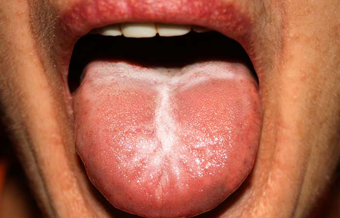 1. White Tongue Or White Coat