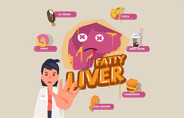 5. Fatty Liver