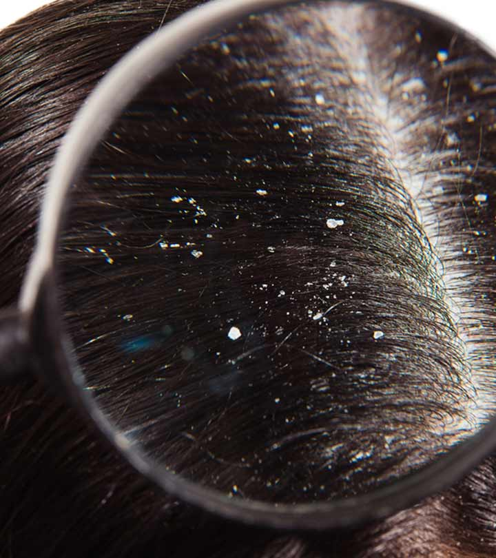Dandruff Vs. Dry Scalp: What Are The Differences?
