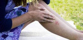 Lyme Disease – Causes, Symptoms, And Natural Treatment