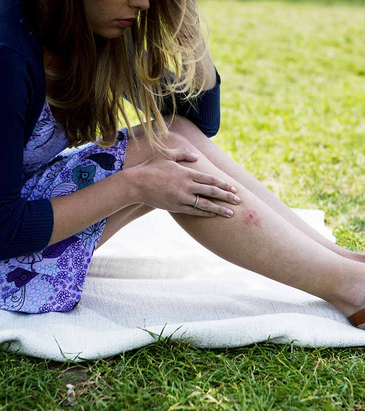 Lyme Disease – Causes, Symptoms, And Ways To Relieve The