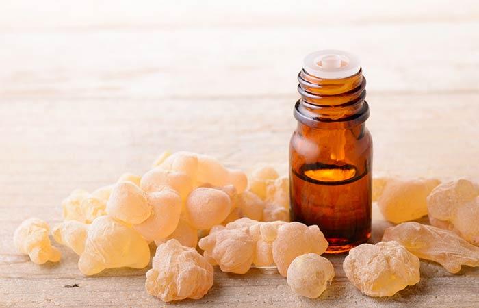 1. Frankincense Oil