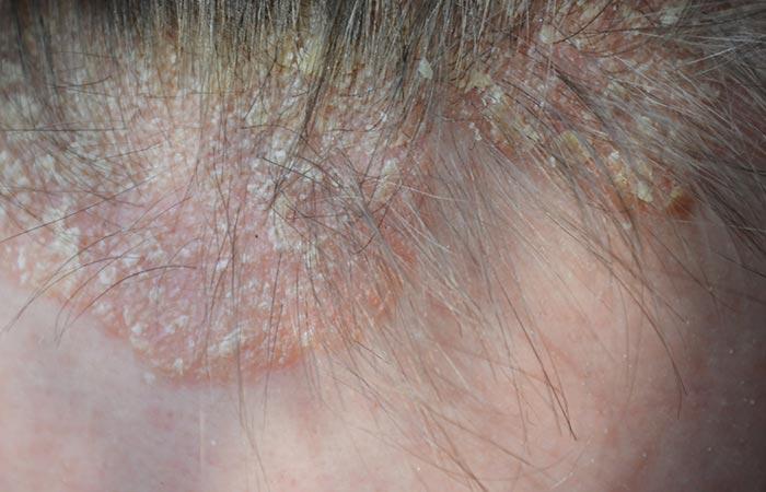 Psoriasis Vs Dandruff - Psoriasis