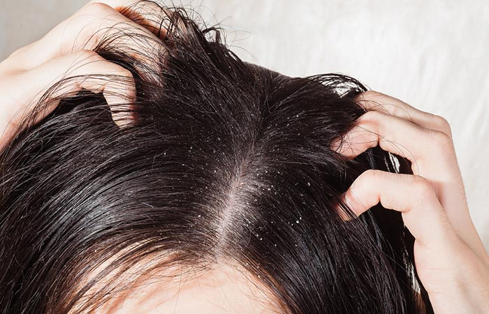 Psoriasis Vs Dandruff - Symptoms