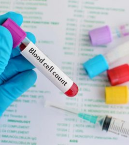 Low White Blood Cell Count: 15 Home Remedies, Causes And Foods To Increase The WBC Count