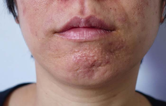 Long And Distorted Pores Due To Skin Aging
