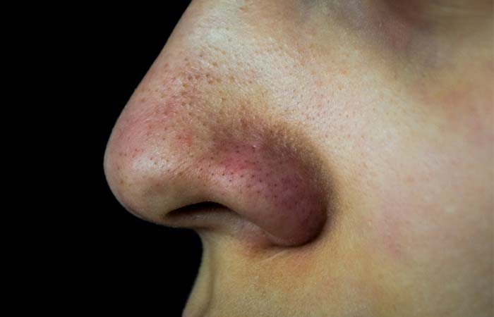 Pores Caused By Blackheads