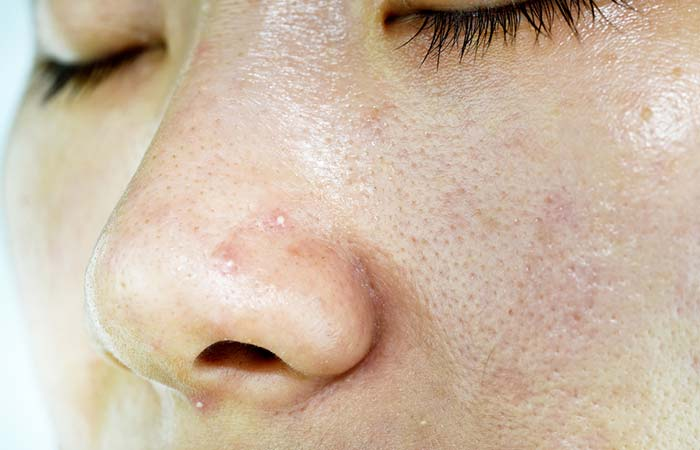 Pores Caused By Whiteheads