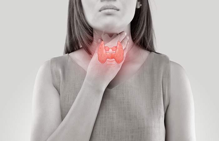 2. Hypothyroidism