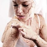Here's Why Dryness Of Skin May Be A Worse Problem Than You Think It Is