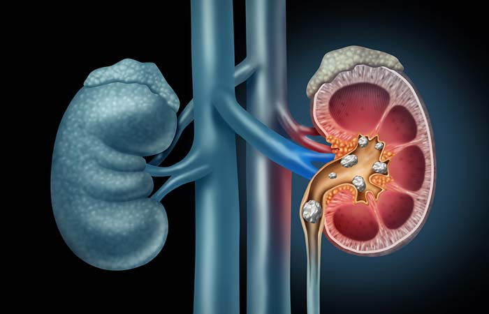 Kidney Stones