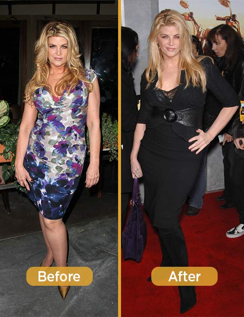 How Did Kirstie Alley Lose Weight