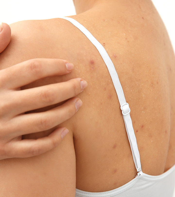 How To Get Rid Of Back Acne Naturally