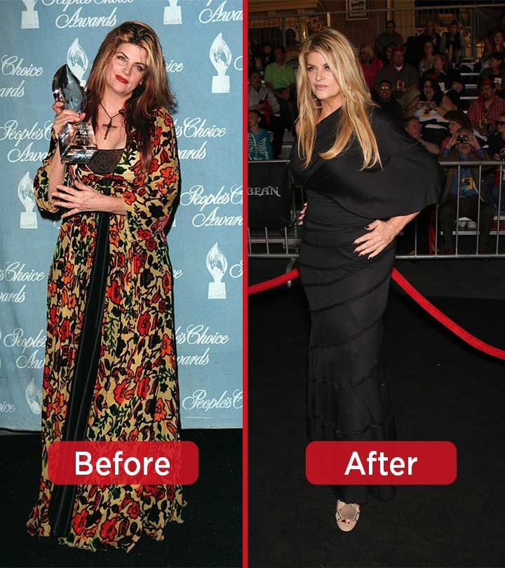 Kirstie Alley Weight Loss – Lose 50 Pounds Like This Star Trek Actress