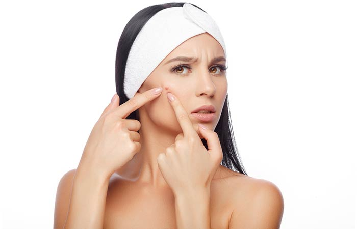 Can Treat Acne