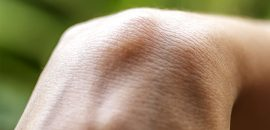 How To Get Rid Of Ganglion Cysts
