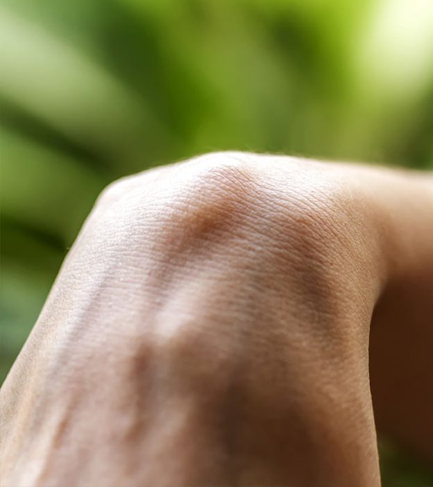 Cure for ganglion cyst
