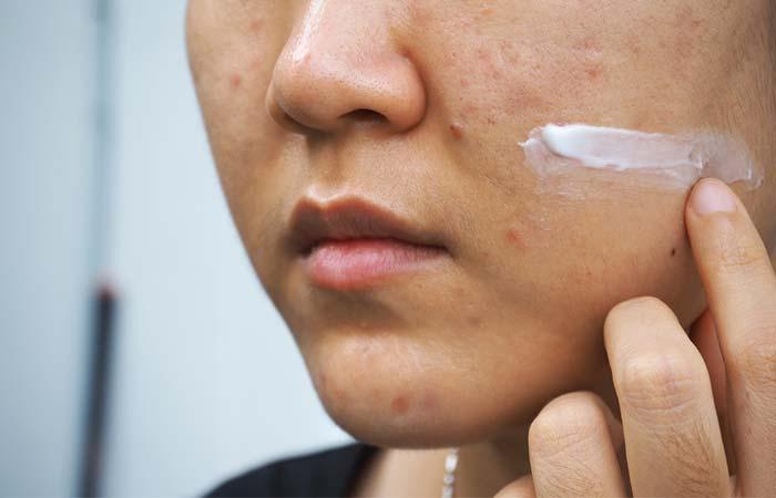 Say No To Hydrocortisone Cream