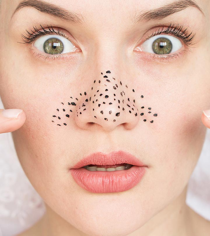 10 Best DIY Blackhead Removal Face Masks