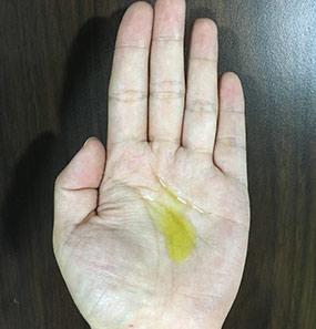 Patanjali Kesh Kanti Hair Oil-My hair needed this restoration!-By chonbeni-7