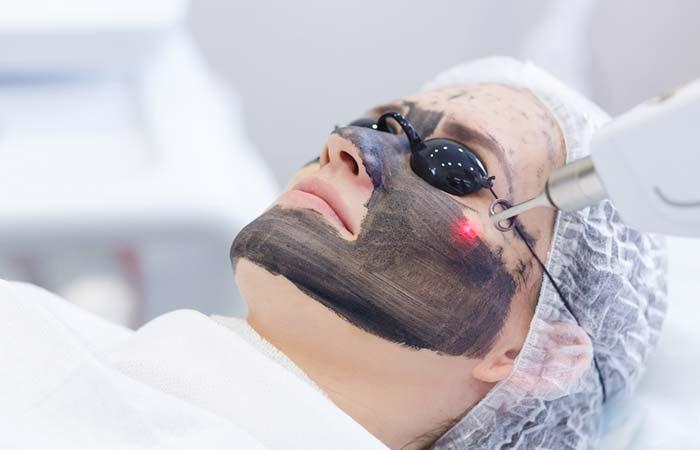 पिंपल/मुंहासे का इलाज - Pimple Treatments in Hindi