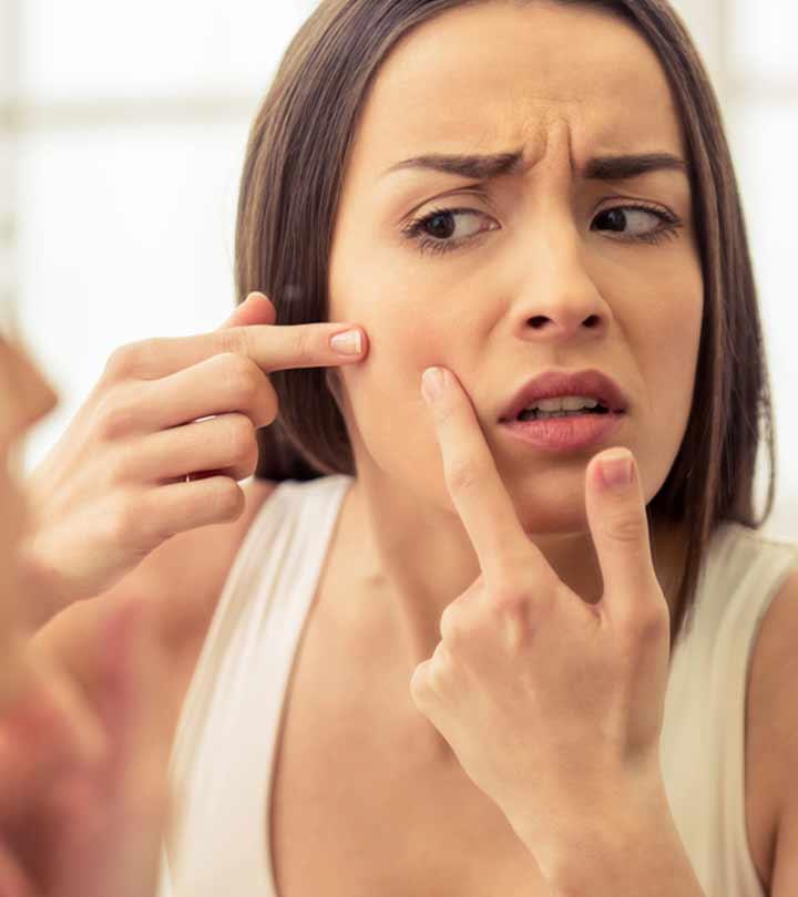 पिंपलमुंहासे हटाने के 20 घरेलू उपाय - Pimple Hatane Ke 20 Gharelu Upay - How to Remove Pimples at Home in Hindi