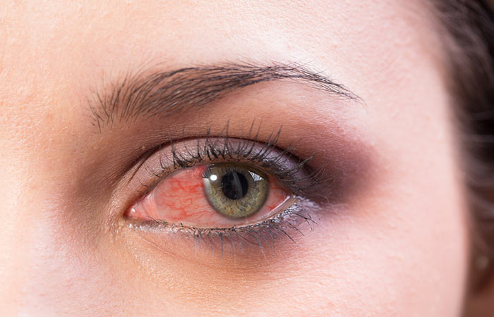 2. Does the redness and dryness of your eyes
