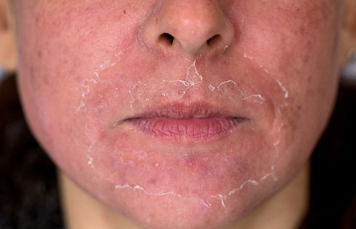 Are There Any Side Effects Of Chemical Peels