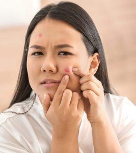 पिम्पल/मुंहासे हटाने के कुछ आसान तरीके – How to Remove Pimples in Hindi