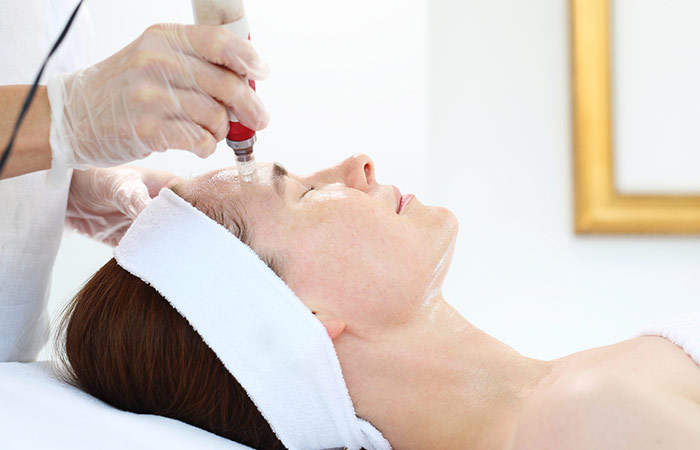 Microneedling The Procedure