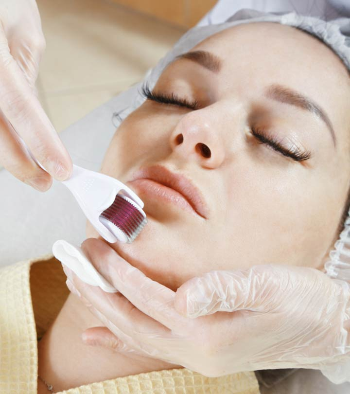 Microneedling Things You Need To Know Before You Try It