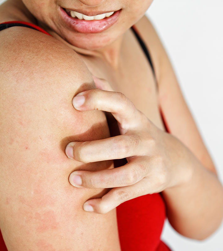 Top 10 Eczema Creams – Best Of 2019