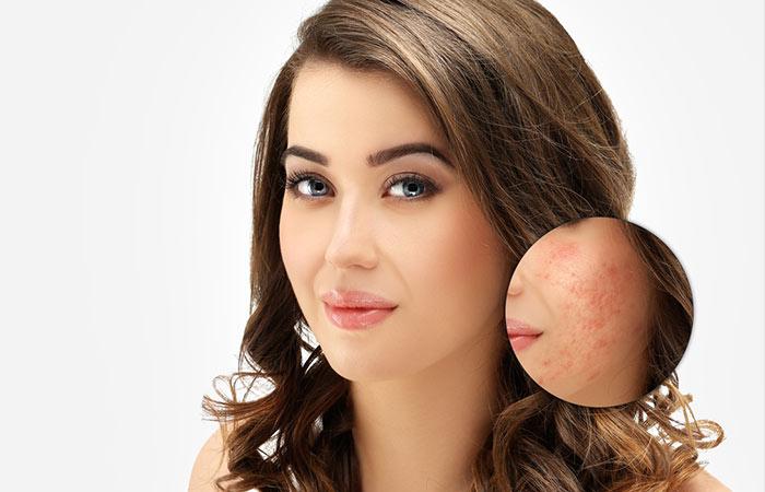 Treats Acne And Clogged Pores