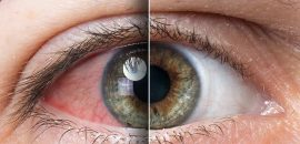8 Exercises All People With Tired Eyes Need