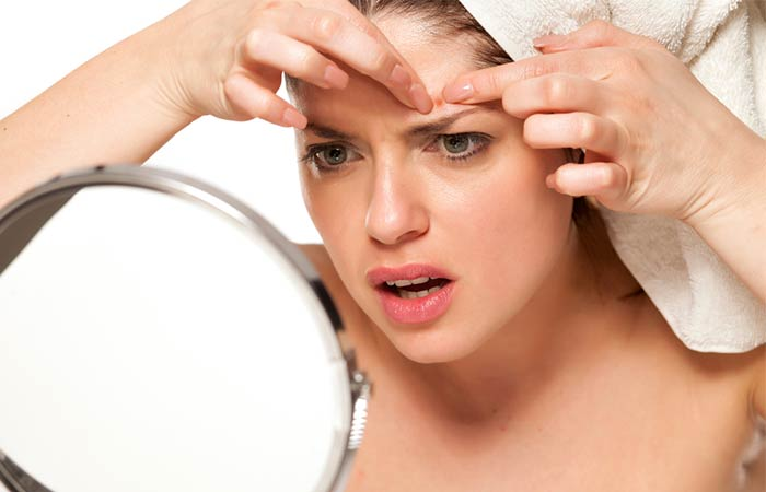 Acne Excoriée How Does Stress Mess With Your Skin