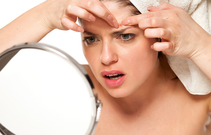Avoid-Touching-And-Popping-Your-Acne