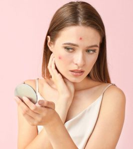 Can You Use Sulfur To Treat Acne