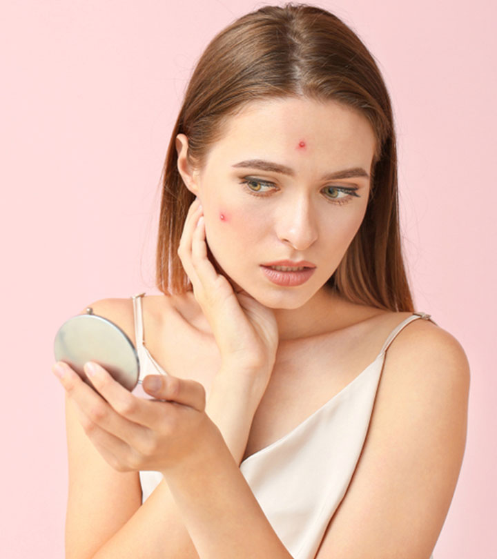 Can You Use Sulfur To Treat Acne?