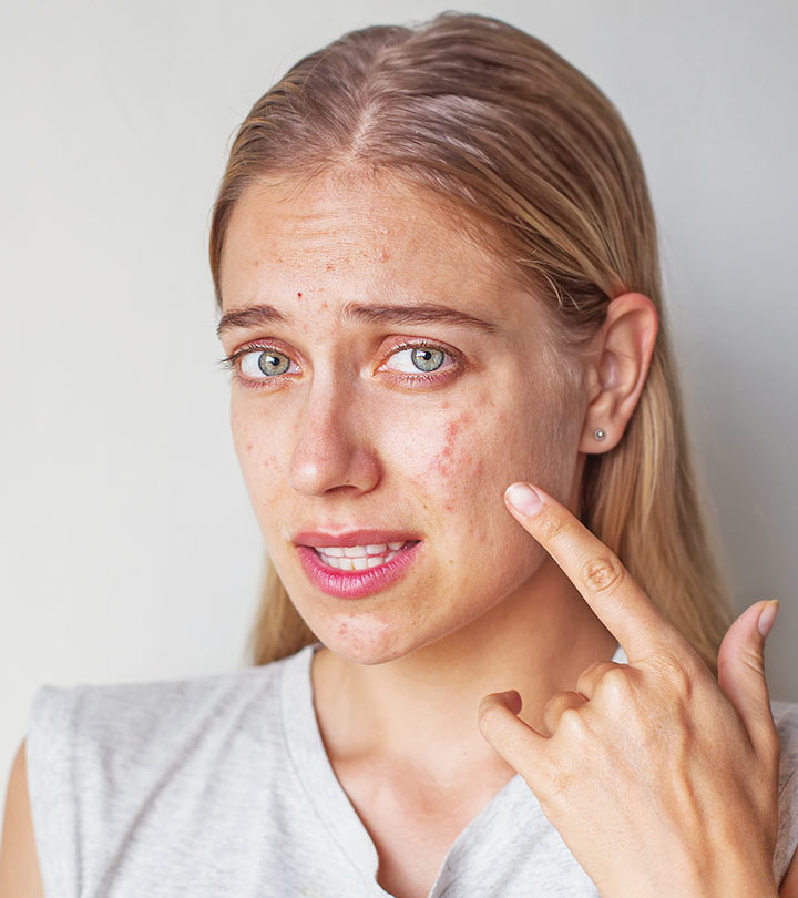 Does Stress Cause Acne? What Is The Link Between Them?