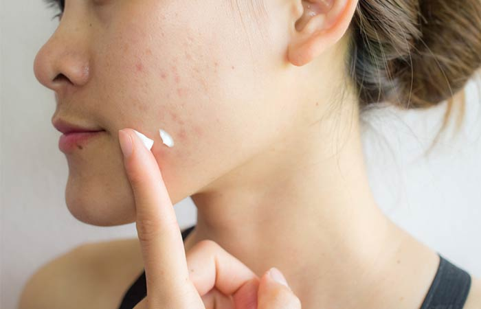How To Control Your Breakouts