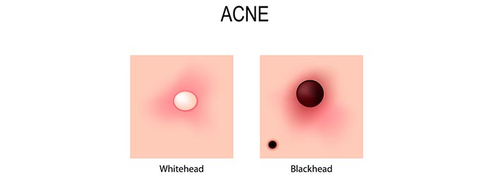 Light (Blackheads And Whiteheads)