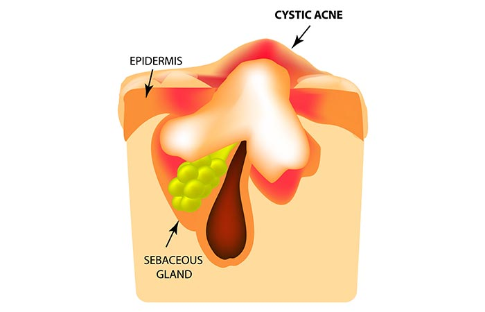 Severe (Cysts)