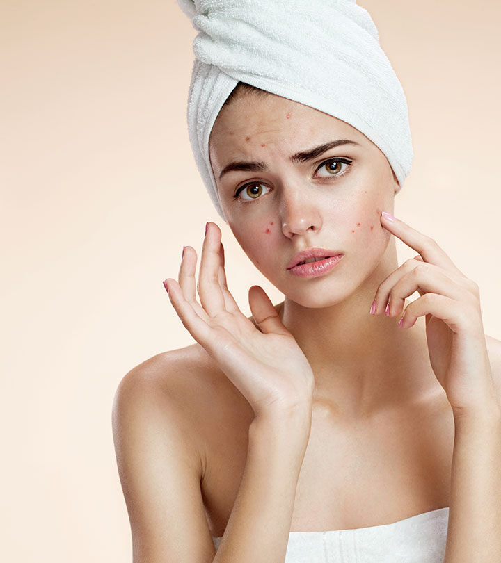 Vitamin A For Acne: Is it An Effective Treatment?