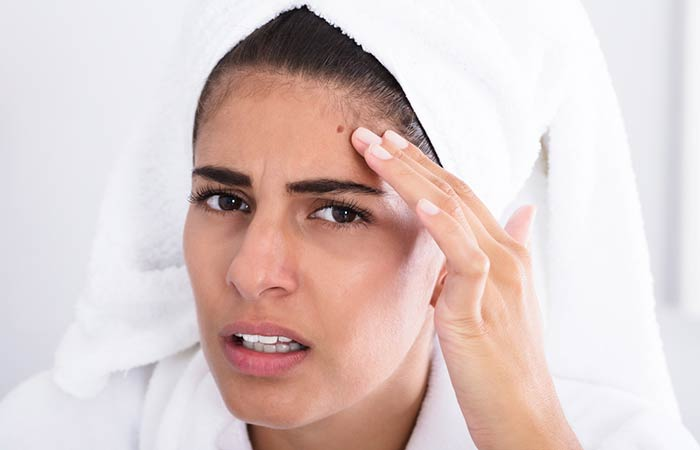 What Are The Other Causes Of Acne
