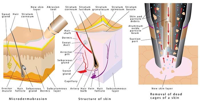 Cos'è la microdermoabrasione?