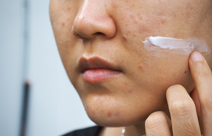 How Does Accutane Treat Acne
