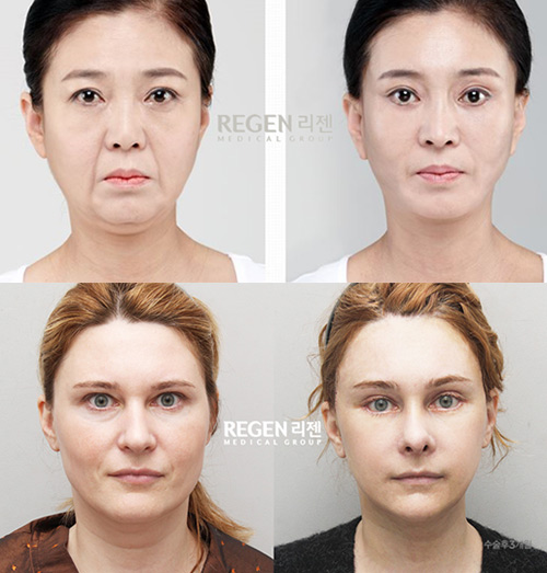 Incisional Face Lift
